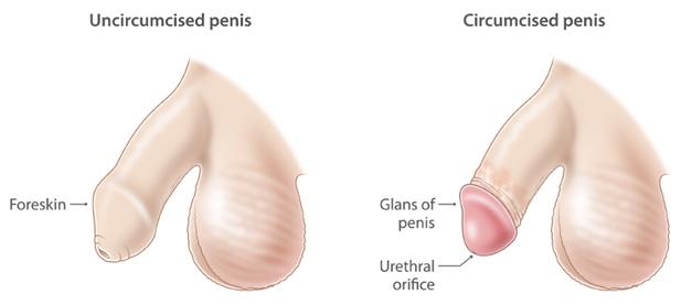 Operatie fimoza