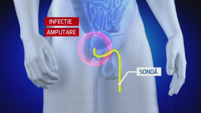 medicamente pentru erecție în farmacie creșterea reală a dimensiunii penisului