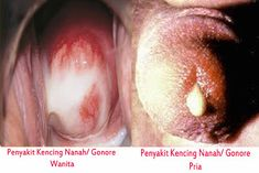 Totul despre sifilis: Cauze, Simptome si Tratament | Doc.ro