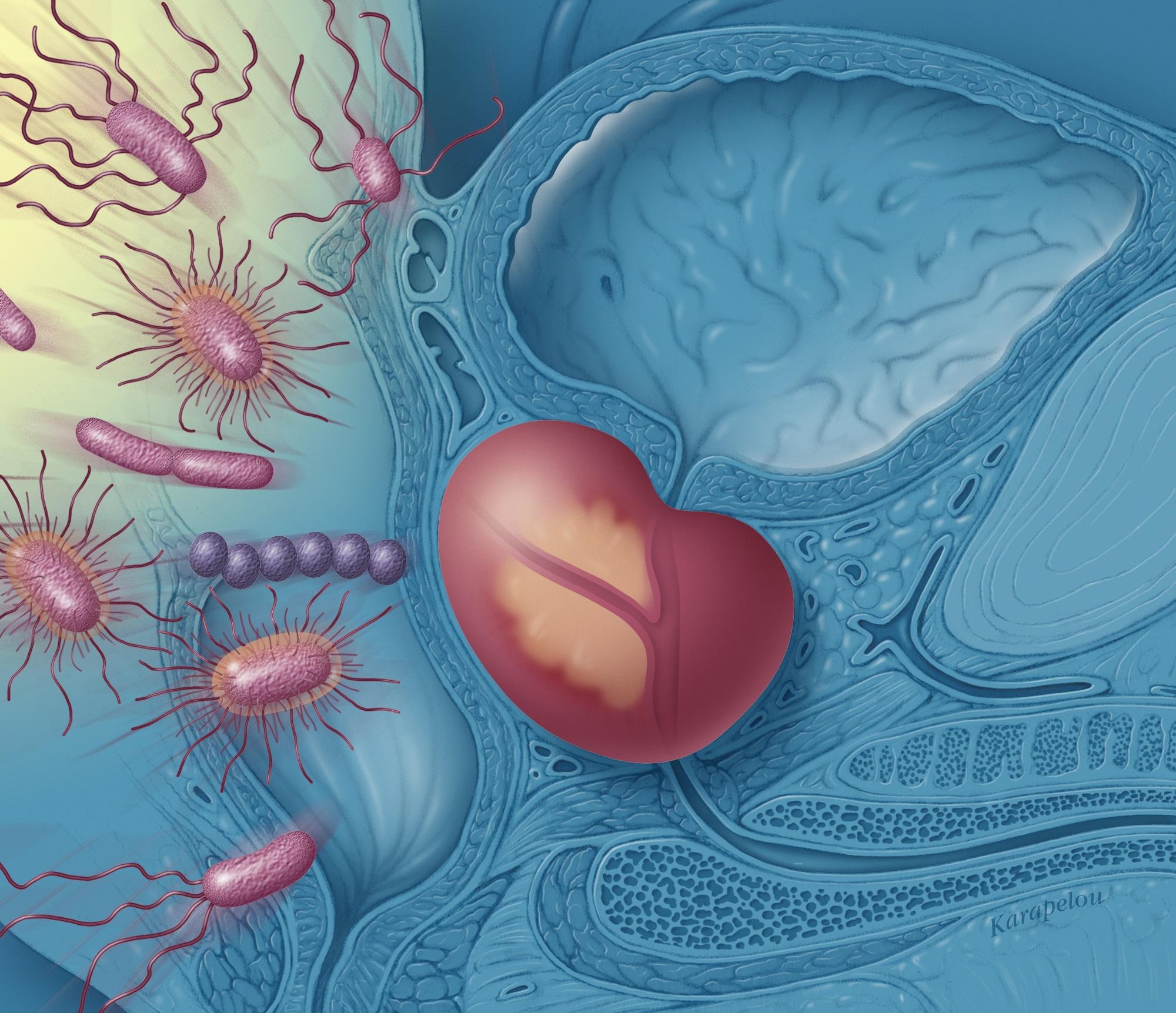 erecție slabă cu prostatită cronică întoarce penisul