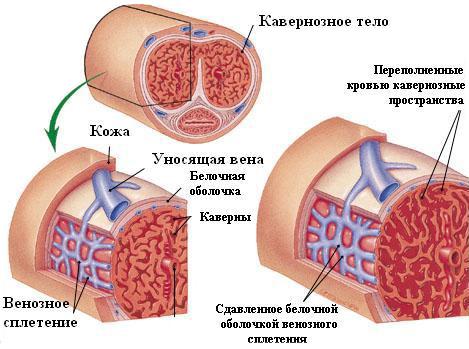 erecție după operația de bypass problema penisului ce să faci