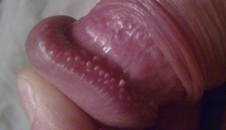 umflarea pieli penisului