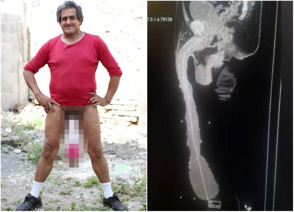 fiziologie penis efect asupra erecției masculine