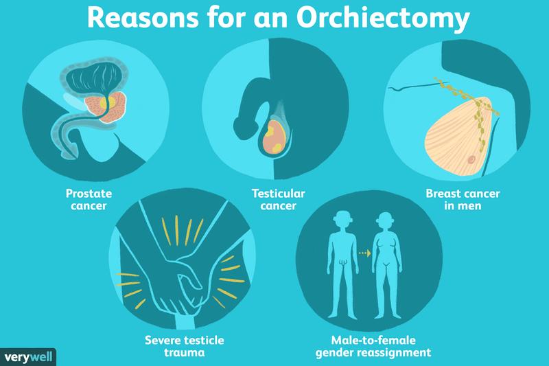 erecție cu orhiectomie