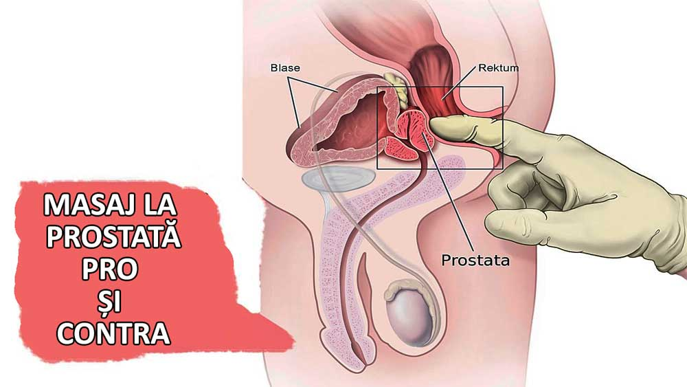 cum afectează masajul de prostată erecția de ce bărbații în 60 de ani nu au erecție