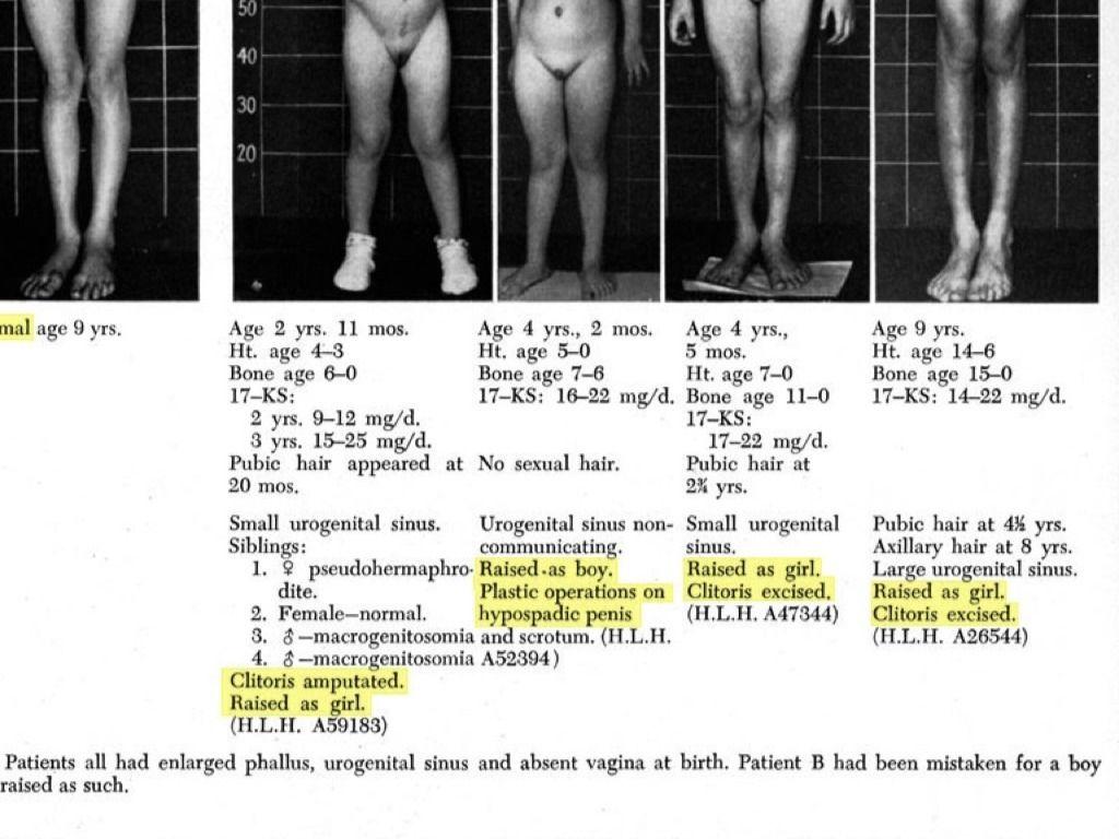 Priapismul (erecţie patologică)