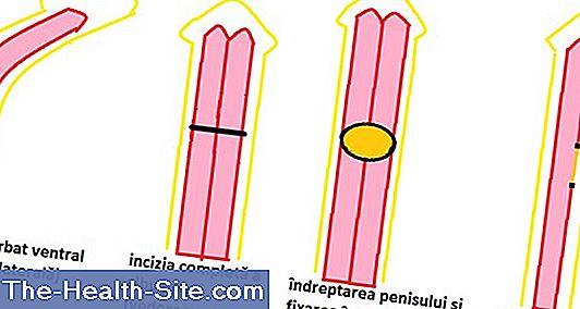 dimensiunea normală a penisului cu o erecție