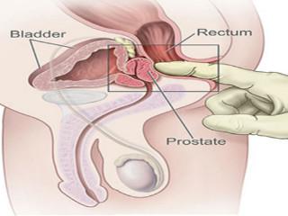 ce trebuie făcut atunci când erecția slabă cu prostatită cea mai mare femeie penis