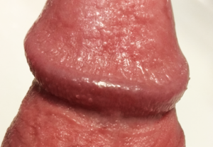 Dictionar Medical glandul penisului