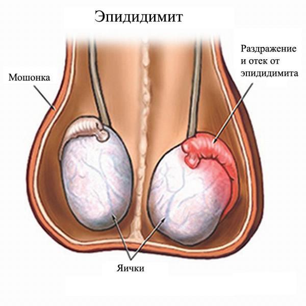 Uretrida la bărbați - simptome și tratament la domiciliu