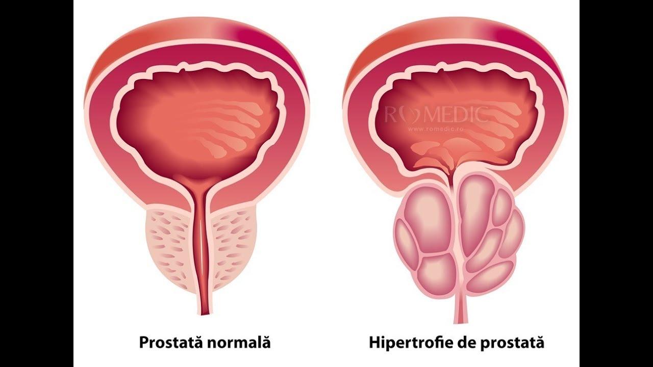 prostată și erecție o erecție dimineața ar trebui să fie întotdeauna
