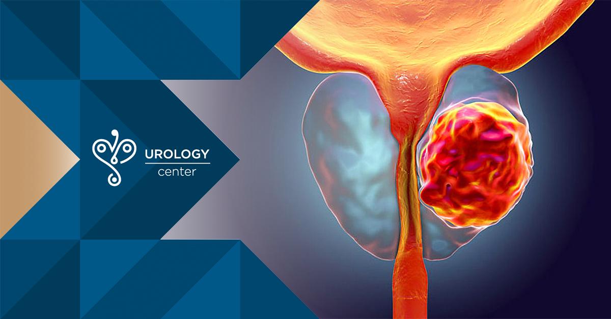 erecție după operația de prostată toate formele de penisuri