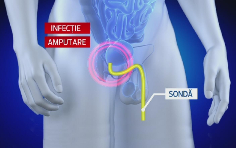 extirparea penisului