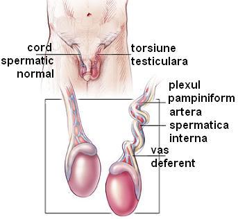 dureri ale testiculelor