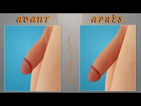 Alungire de penis (Faloplastie) - Dr. Florin Juravle