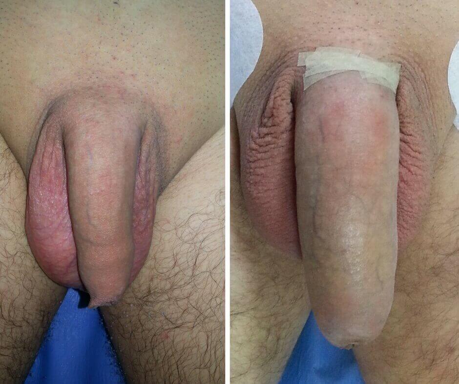 tipuri de penis masculin