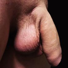 penis masculin cu erecție