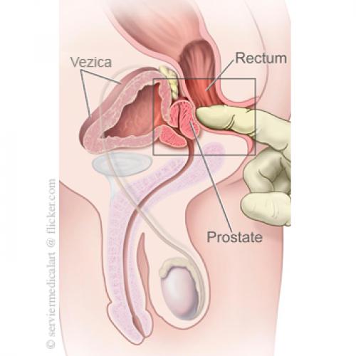 pentru erecție și pentru prostatită activator al penisului