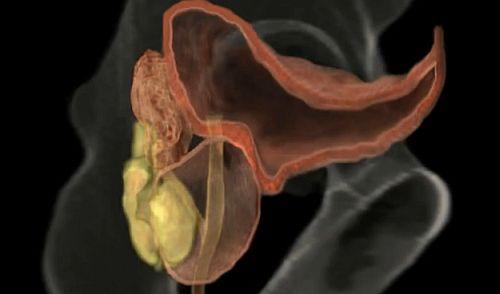 prostată și erecție cum să nu pierzi o erecție în timpul actului sexual