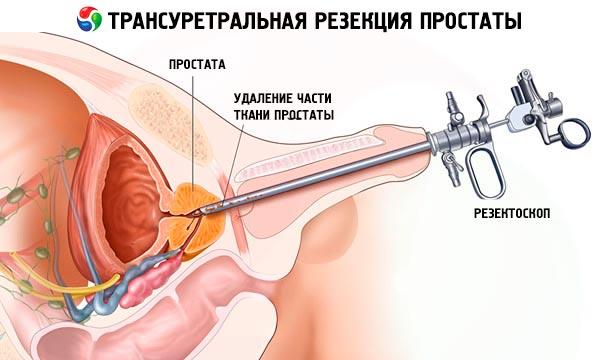 metode de erectie