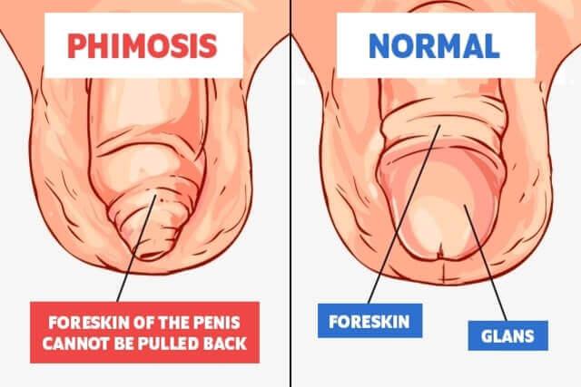 Fractura de penis - Terramed