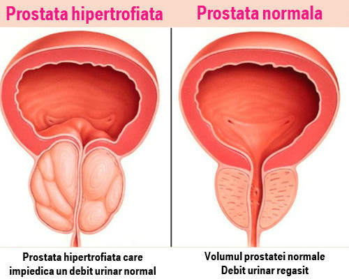 care este legătura dintre prostatită și erecție