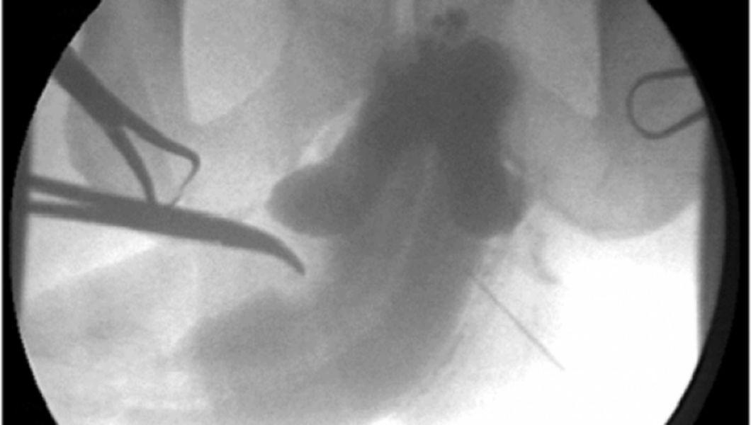 penis invinetit tratament sfaturi medicale - simptome penis invinetit