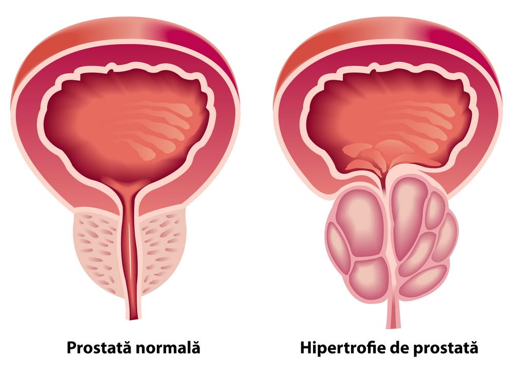prostatită și pierderea erecției