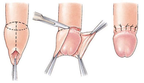 prevenirea erecției penisului erecție în su jok