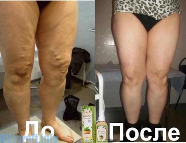 Lyoton sau Troxevasin: ce este mai bine cu venele varicoase pe picioare?