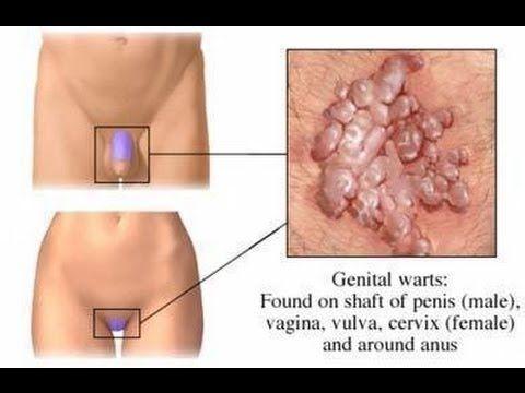 sosirea penisului