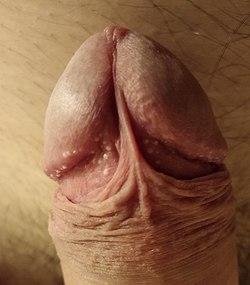 un bărbat cu un penis neobișnuit
